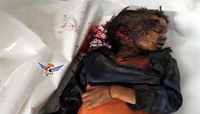 اطفال حقوقيون دوليون : رفع العدوان السعودي من القائمة السوداء وصمة عار في مجال حقوق الانسان