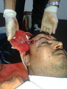 المحامي النهاري 225x300 مقتل محامي برصاص مسلحين كانوا على متن دراجة نارية بالحديدة
