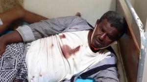 المصابين بالقنبلة التي تم رميها اليوم 610x343 300x168 إصابة أكثر من 34 شخصاً جراء انفجار قنبلة في سوق شعبي بالحديدة