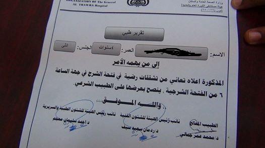 تقرير الحديدة: شاب عشريني يغتصب طفله عمرها 4 اعوام بمديرية المراوعه