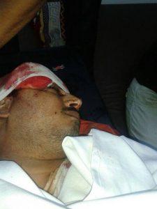 جلال النهاري المحامي 225x300 مقتل محامي برصاص مسلحين كانوا على متن دراجة نارية بالحديدة