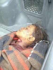 صورة الطفلة المقتولة بالحديدة1 225x300 النائب العام يوجه بالاستعجال في قضية الطفلة المذبوحة في الحديدة