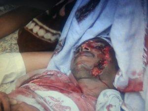 صورة ضحايا الانفجار 300x225   صور  مقتل 10 أشخاص وإصابة 20 أخرين في إنفجار سيارة مفخخة أستهدفت تجمعاً للحوثيين بالحديدة