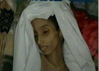 طفله3 طفلة يمنية تسجن لشهرين وتحرم من الطعام حتى الموت جوعاً بمحافظة المحويت