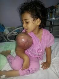 الديوان الملكي السعودي يوجه بعلاج الطفلة اليمنية  ريتاج .. ووالدها  شكراً سلمان