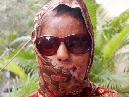هندي هندية تعرضت لاعتداء بالحمض الكاوي.. وأصبحت مليونيرة