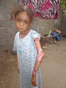 03 224x300 الحديدة : الطفلة فاطمة تعاني من طفح جلدي وتناشد رجال الخير