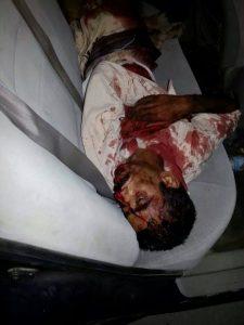 10407036 10203821111860642 7256845289231963365 n 225x300 الحديدة .. مقتل مواطن بالرصاص إثر خلافات بين جنديين بالخوخة