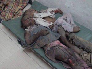604 شهداء من الأطفال بالحديدة منذ بدء العدوان السعودي على بلادنا