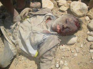 1175 300x225 موقع  الحديدة نيوز  ينفرد بنشر صور أطفال يمنيين قتلى :: شاهدوا من قتلهم !