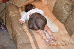 1186 300x200 ورم سرطاني يلتهم جسد الطفلة رنيم وأسرتها تناشد فاعلي الخير