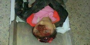 1251 300x150 إستشهاد عشرات النساء والاطفال بعدوان سعودي على عرس باليمن