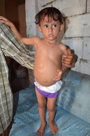 1259  الطفلة ريفال بالحديدة تعاني من ورم خبيث في الكلية اليمنى تناشد رجال الخير مساعدتها لأجراء العملية
