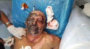 """12592406 1514821958814329 2938367927746261403 n 300x165 العدوان السعودي يستهدف منشآت """"رأس عيسى"""" النفطية ..26 شهيداً ومصاباً حصيلة أولية  صور"""