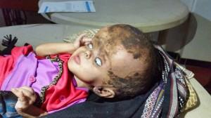 24 300x168 طفلة بالحديدة تعاني من ورم بالدماغ تناشد رجال الخير مساعدتها في قيمة تكاليف العملية