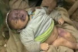 2101 موقع  الحديدة نيوز  ينفرد بنشر صور أطفال يمنيين قتلى :: شاهدوا من قتلهم !