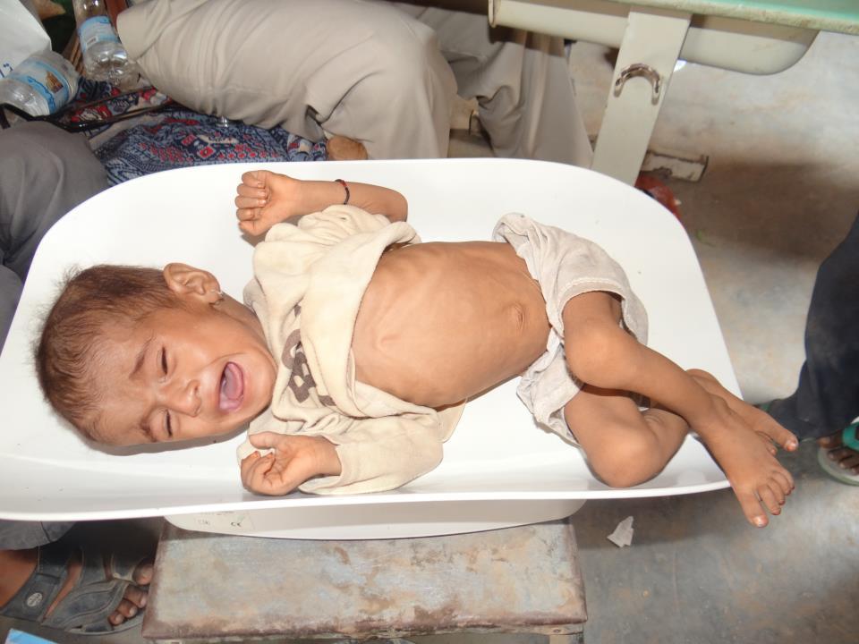 3(2) معالجة سوء التغذية عند الاطفال بمديرية الزهرة بالحديدة