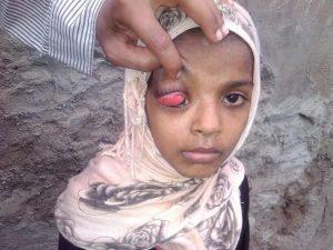 303 300x225  صور  طفلة بالحديدة تعاني من ورم سرطاني في العين ومناشدات بمساعدتها للسفر للعلاج