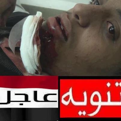 393583 371103239627293 1354230693 n صنعاء : حراسة أمنية مشددة على أحد جرحى إقتحام السفارة الامريكية
