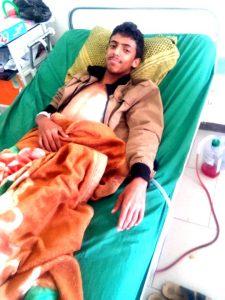 4426 225x300 الحرب تفاقم من معاناة المرضى .. حتى الشباب مصابون بسوء التغذية في اليمن !