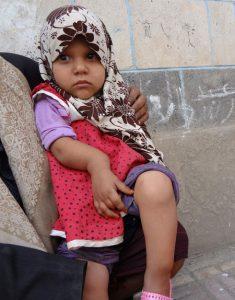 444442 235x300 طفلة يمنية تعاني من تشوه خلقي في يدها ورجلها تناشد فاعلي الخير إنهاء معاناتها