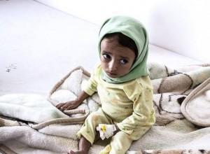 661 300x220 مسؤولتان دوليتان تحذران من الوضع الانساني «الحرج» في اليمن وتدعوان لزيادة الدعم