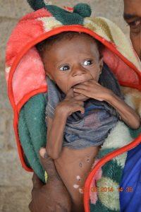 DSC 7527 200x300 طفل بالحديدةيعاني من تشوّه خلقي في القلب يناشد فاعلي الخير مساعدتة
