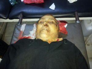 IMG 20140611 WA0010 300x225 موقع  الحديدة نيوز  ينفرد بنشر تفاصيل الجريمة التي هزت مدينة الحديدة والتي دفعت بشقيقين على قتل أمهما
