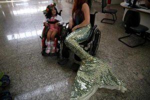 عروس البحر تساهم في علاج الأطفال ذوي الاحتياجات الخاصة في البرازيل