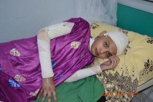unnamed11 300x200 هديل تناشد فاعلي الخير مساعدتها في إجراء عملية لها في الخارج بعد أن أحترق جسدها بالكامل